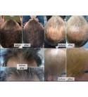 FitLine med Hair+ produkt na wypadanie włosów